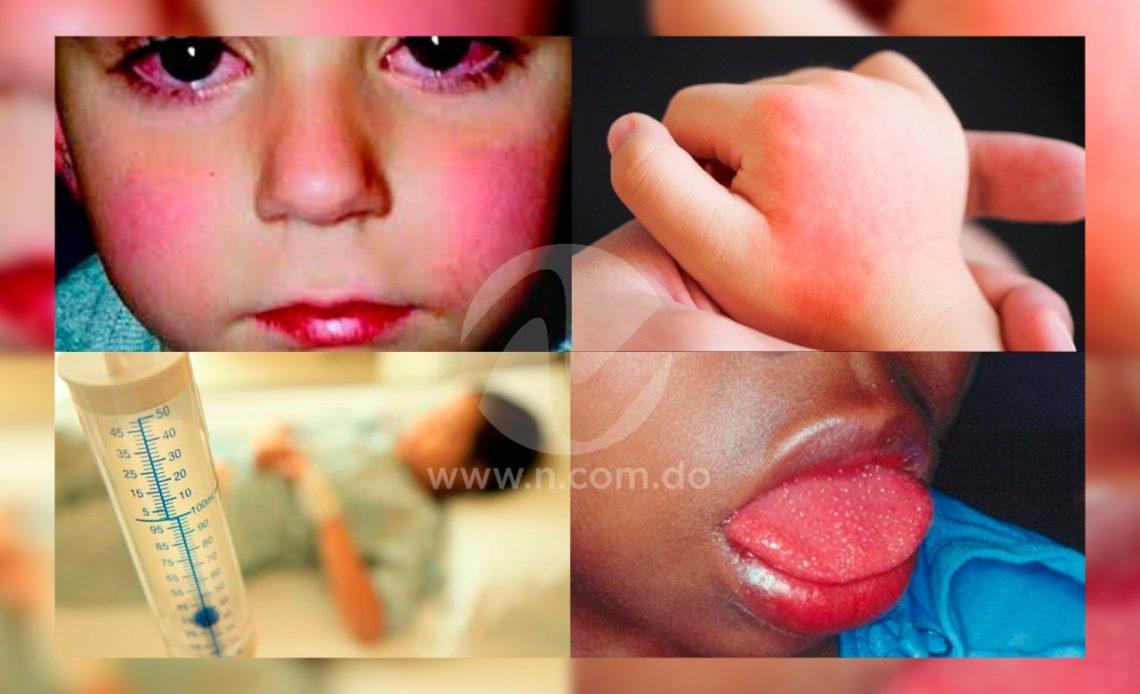 Sindrome Inflamatorio Multisistémico.